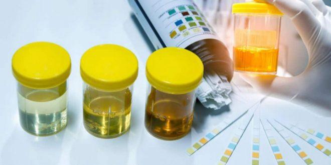 Nghiện ma túy: Nguyên nhân, triệu chứng, chẩn đoán và điều trị