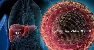 Những điều cần biết về Viêm gan virus B